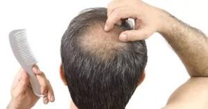 Причины возникновения лысины у мужчин