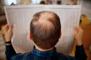 Возможно ли остановить выпадение волос