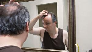 Как предотварить облысение у мужчин