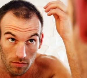 Как предотвратить облысение у мужчин