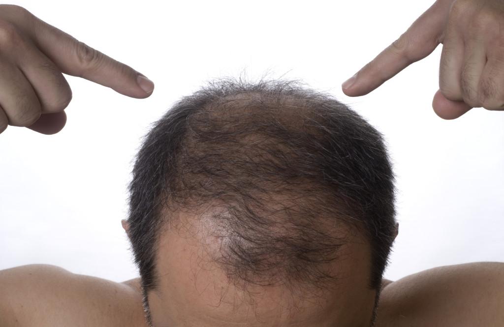 Средства лечения облысения у мужчин