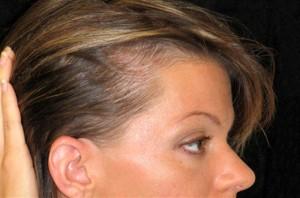 Причины андрогенетической алопеции у женщин