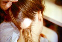 Симптомы очаговой алопеции
