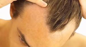 Почему у мужчин выпадают волосы ?