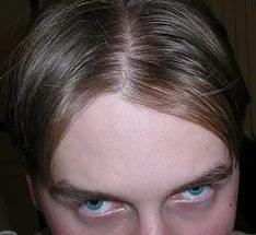 Поредение волос на макушке у женщин причины