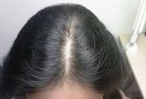 Факторы выпадения волос