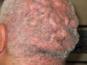 Лечение воспаления волосяного фолликула
