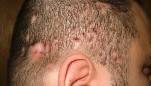 Причины воспаления волосяного фолликула