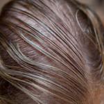 Почему быстро жирнеют волосы