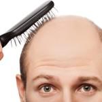 Рецепты масок от облысения у мужчин