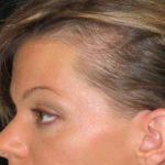 Выпадение волос на висках у женщин