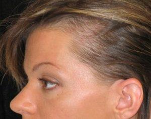 выпадают волосы на висках у женщин