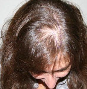 почему у женщин редеют волосы