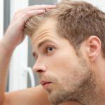 Как остановить облысения у мужчин